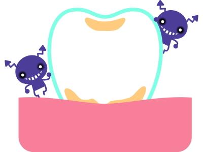 歯垢(プラーク)